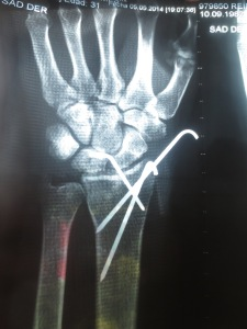 Broken Wrist XRay Damage Death Road